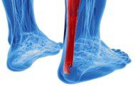 Tendinite tendon d'achille chez le coureur à pied