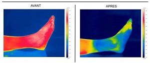 Voici les effets du froid procuré par le gel Cryo. © Eona